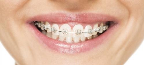 orthodontic-braces-2016-09-17-01-11-18